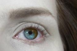 Farbwechsel durch Wimpernseren?